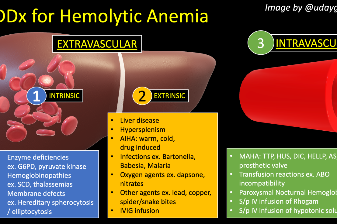 How do you workup hemolytic anemia?